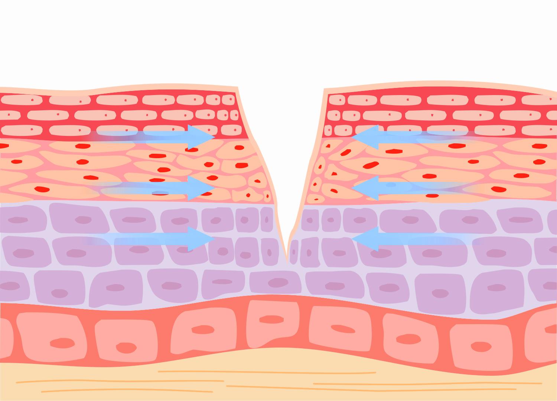 皮肤损伤修复功效
